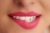 Проблемы при подборе цвета зубов.